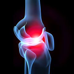knee joint 3d - glucosamine for weight loss