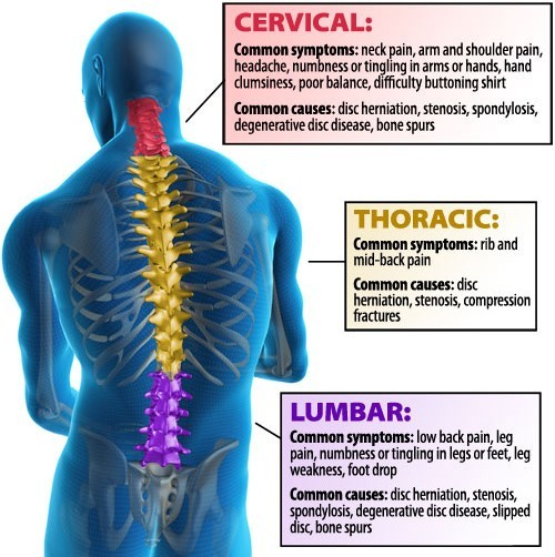 areas of back pain